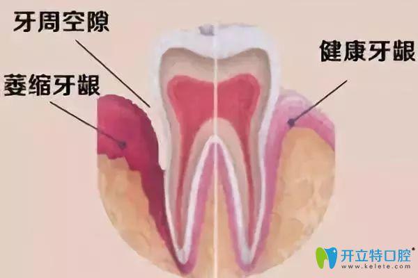洗牙并不会对牙齿造成伤害
