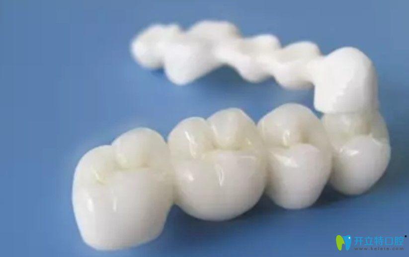 二氧化锆全瓷牙的优势