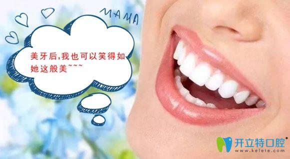 正畸配合美加超薄瓷贴面修复是我牙齿变美的小秘笈!