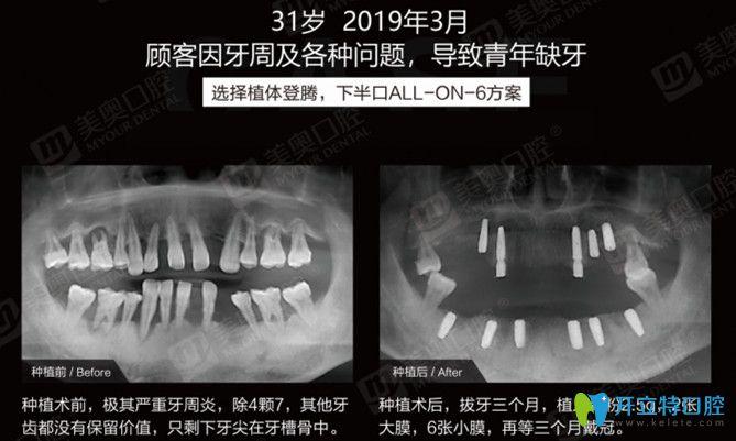 实锤!有案例证实患牙周炎照样可以做ALL-ON-6半口种植牙