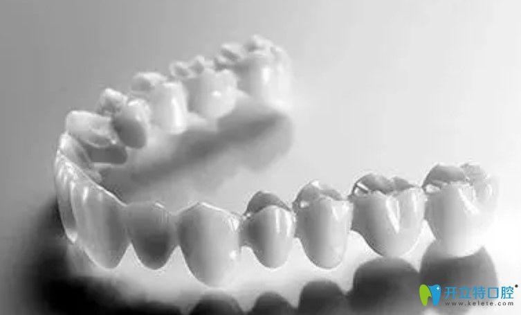 二氧化锆全锆牙适用范围
