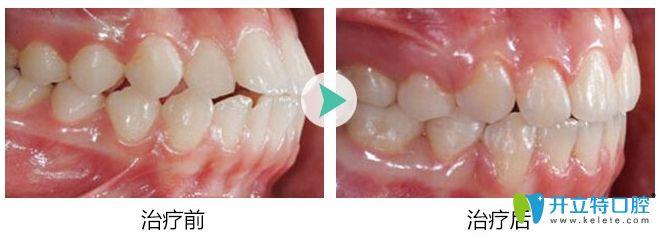 成都博爱口腔隐适美龅牙矫正前后对比效果图