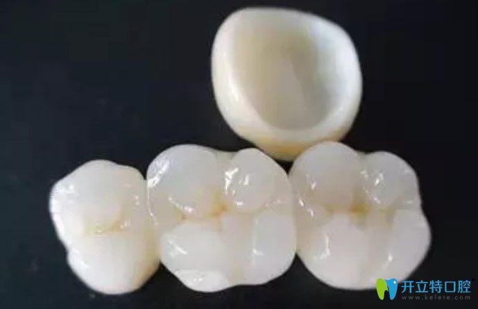 为啥牙医建议做二氧化锆全瓷牙,原来竟是因为这些...
