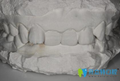兰州妹子28岁时戴金属自锁托槽牙套矫正了多年的深覆合牙齿