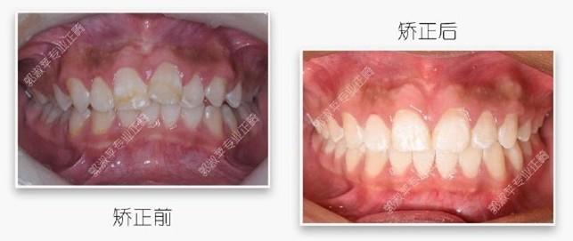 深覆盖矫正经历证实:隐适美在推磨牙后移方面的效果不错