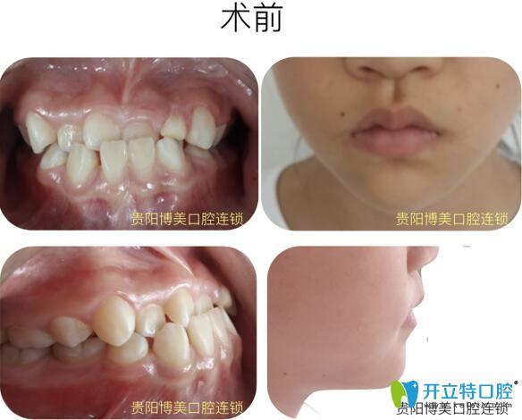 哇塞!戴陶瓷自锁牙套才17个月就矫正了我前牙反颌+牙列不齐
