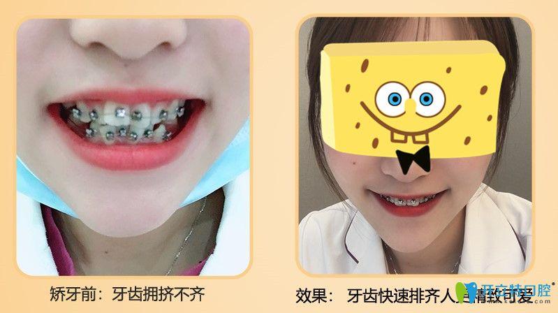 牙齿拥挤不齐的小姐姐在广大口腔做完矫正后的效果