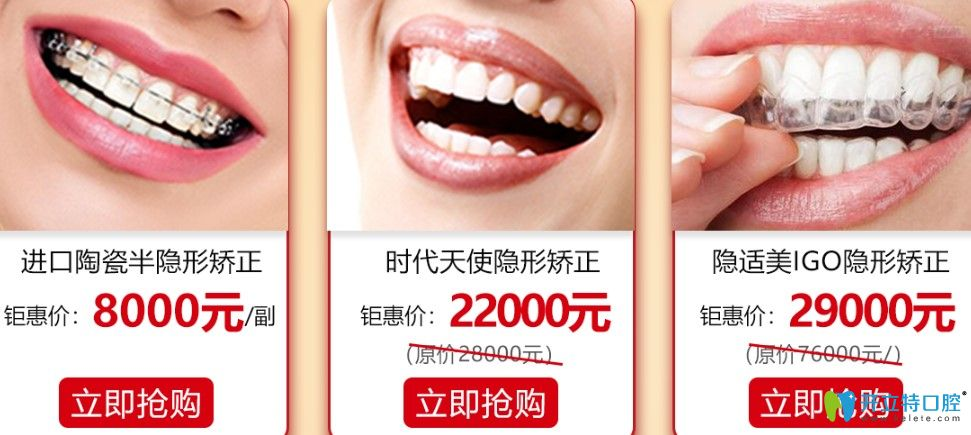 广大口腔牙齿矫正收费情况