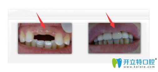 老妈在这家正规牙科做完瑞典nobel种植牙后可以啃苹果了