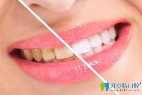 牙齿美白对比示意图
