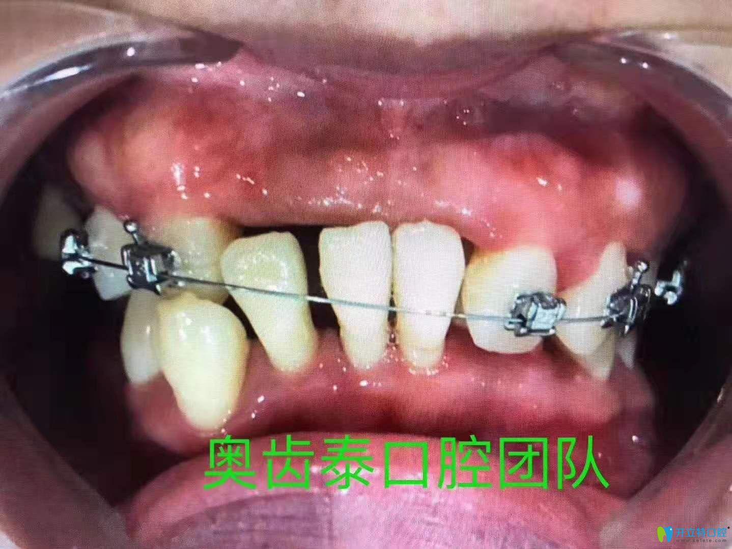 牙周炎都这样了,金属自锁托槽矫正半年后这效果必须点赞