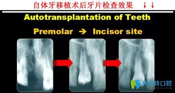 自体牙种植术后效果