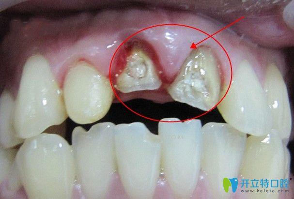 全瓷牙基牙发生根尖炎也会引起吃东西疼痛