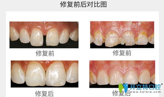 牙齿贴面修复前后对比图