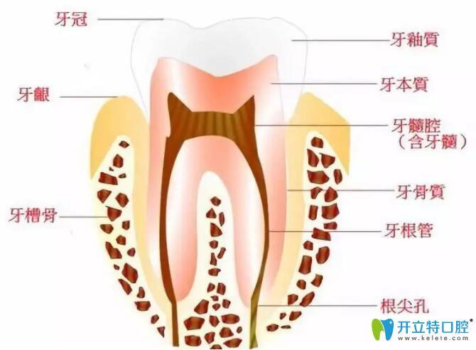蛀牙修复医生为啥建议我做根管治疗而不是补牙呢?