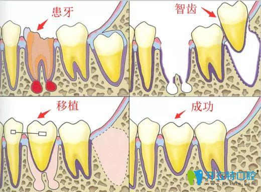 自体牙移植过程图解