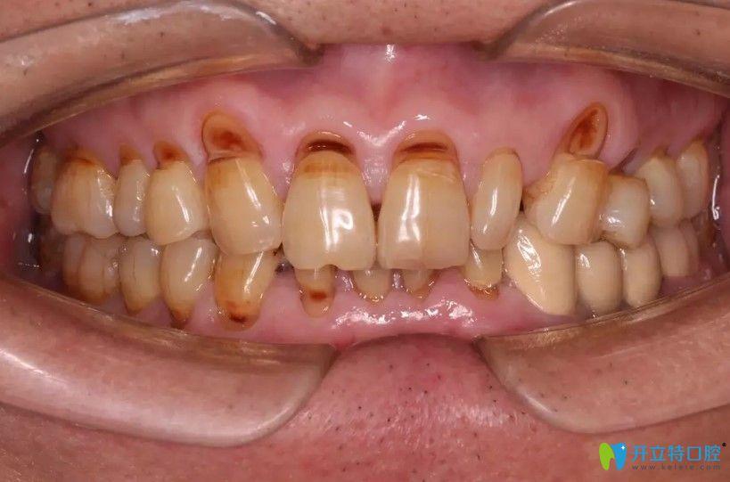 深圳这家牙科的医生对牙楔状缺损顾客做了什么竟被送锦旗