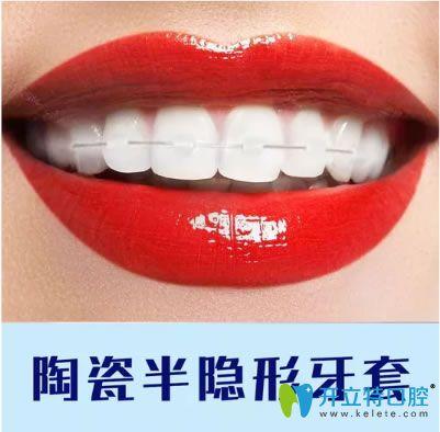 重庆维乐口腔陶瓷半隐形牙套
