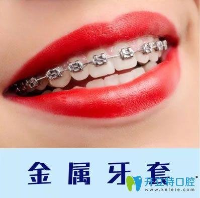 重庆维乐口腔金属牙套
