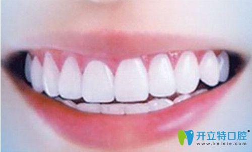 美白牙齿活动详情