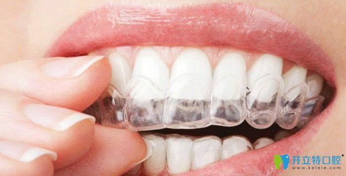 哪位妞来判断下我戴时代天使隐形牙套矫正龅牙效果咋样