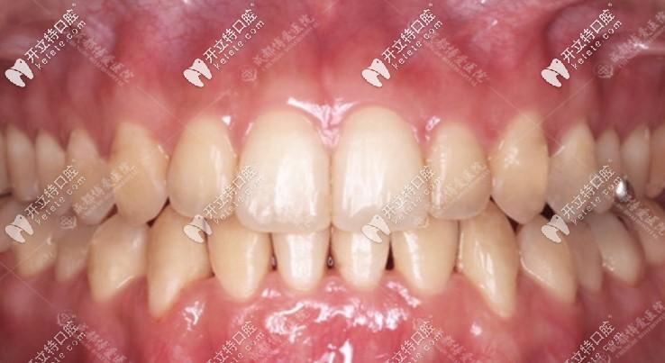 做完隐适美隐形矫正后的牙齿情况
