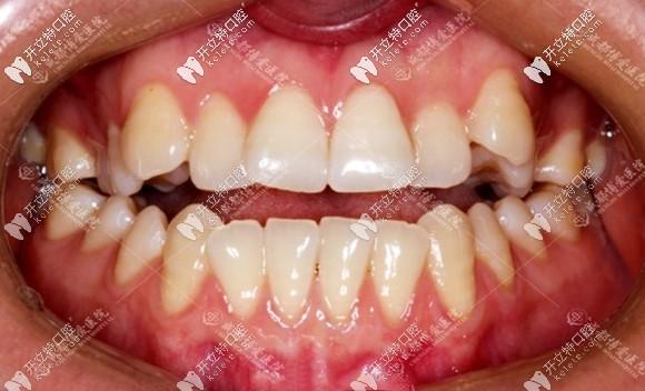 原来成人做牙齿开颌矫正的难度也没有传说中那么大嘛.....