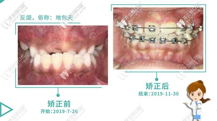 记录8岁儿童牙性地包天戴mrc矫正器+国产金属自锁牙套的经历
