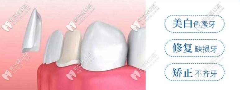 牙缝太大可以通过牙齿贴片改善