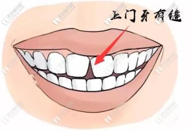 都有哪些原因导致牙缝变大