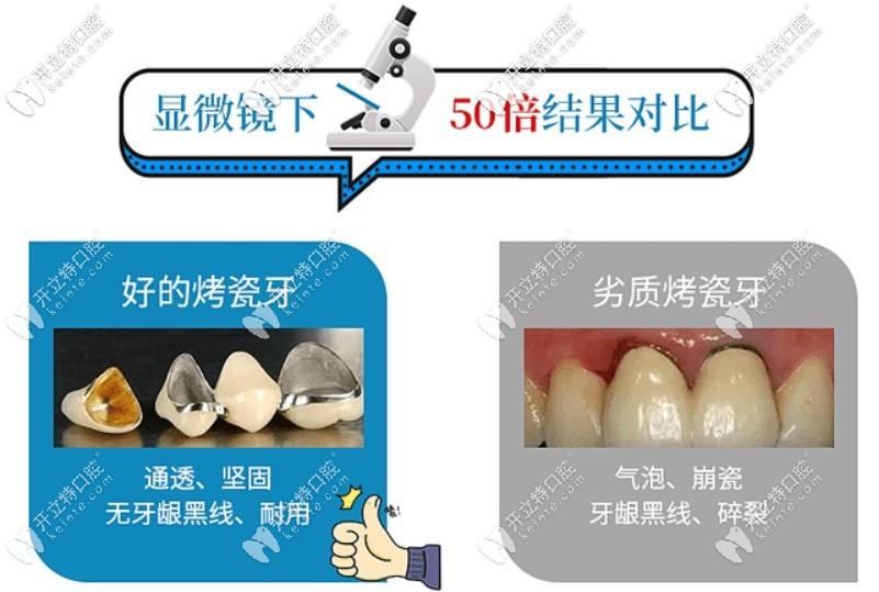 牙缝变大可以补吗