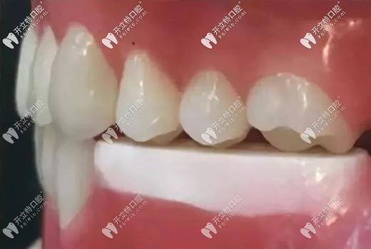 戴临时义齿还可防止植体周围菌斑附着