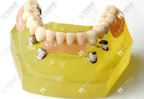 长期戴用过渡性义齿是会引起牙龈萎缩的
