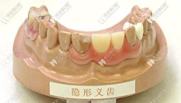 装在牙模上的局部隐形义齿