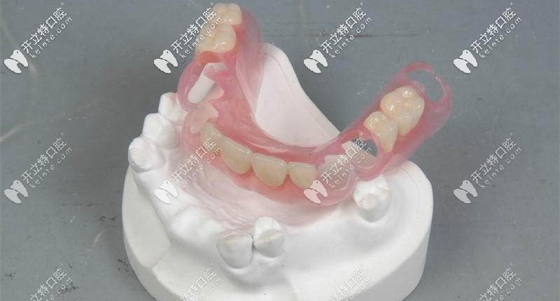 隐形活动义齿又叫弹性义齿