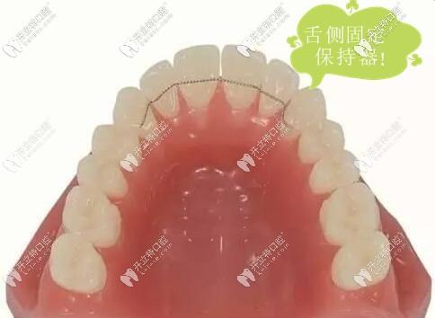 舌侧固定保持器