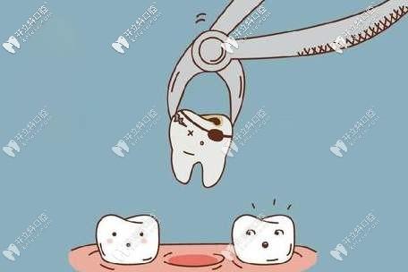 牙齿残根拔掉