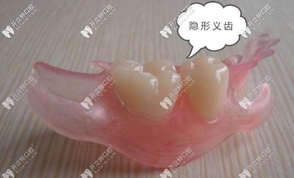 隐形牙齿图片展示