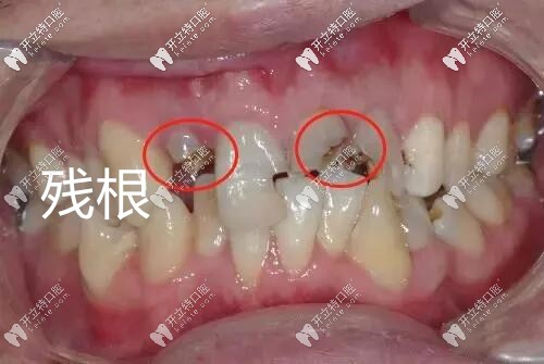 牙齿残根图片