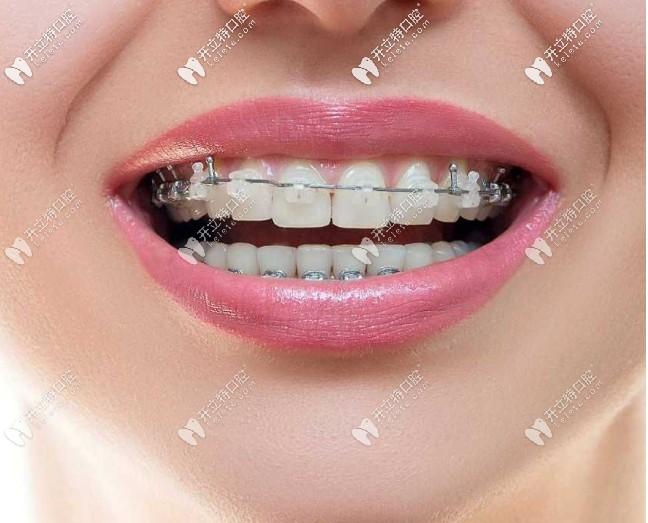 什么是陶瓷半隐形牙套