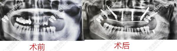 长沙好大夫口腔牙槽骨不足种植案例