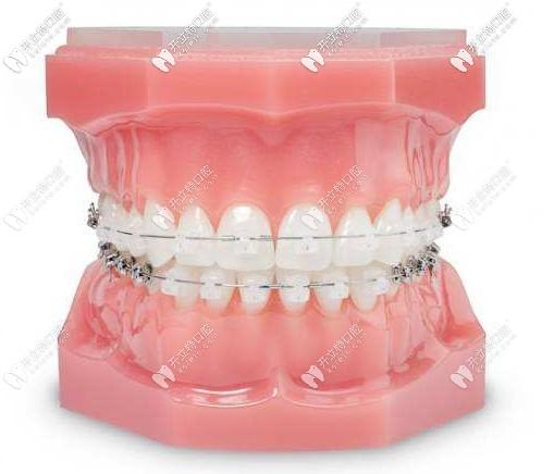 陶瓷半隐形牙齿矫正