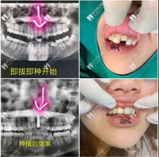 门牙磕断不能保留,即拔即种种植牙当天就能拥有好牙