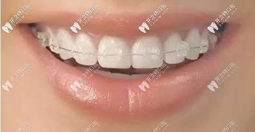 什么是陶瓷半隐形牙齿矫正