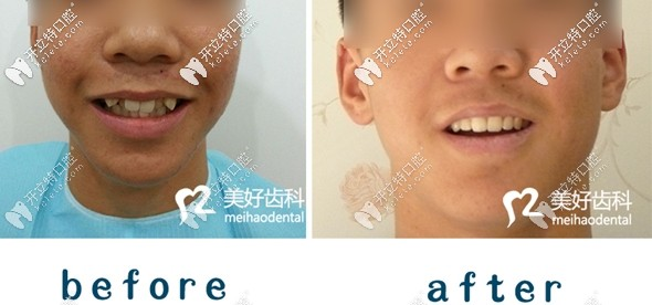 17岁男生花12000元在咸阳矫正牙齿两年的心路历程