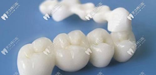 美白牙齿口福活动开始了