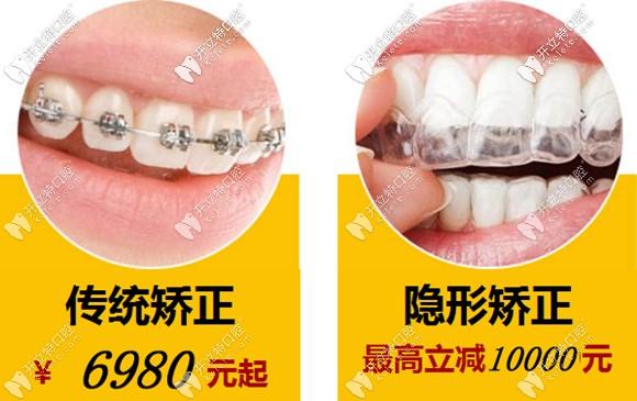 不得不说温州牙齿矫正6千多元的价格还是比较划算滴