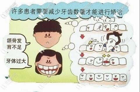 自锁托槽矫正可以免除拔牙