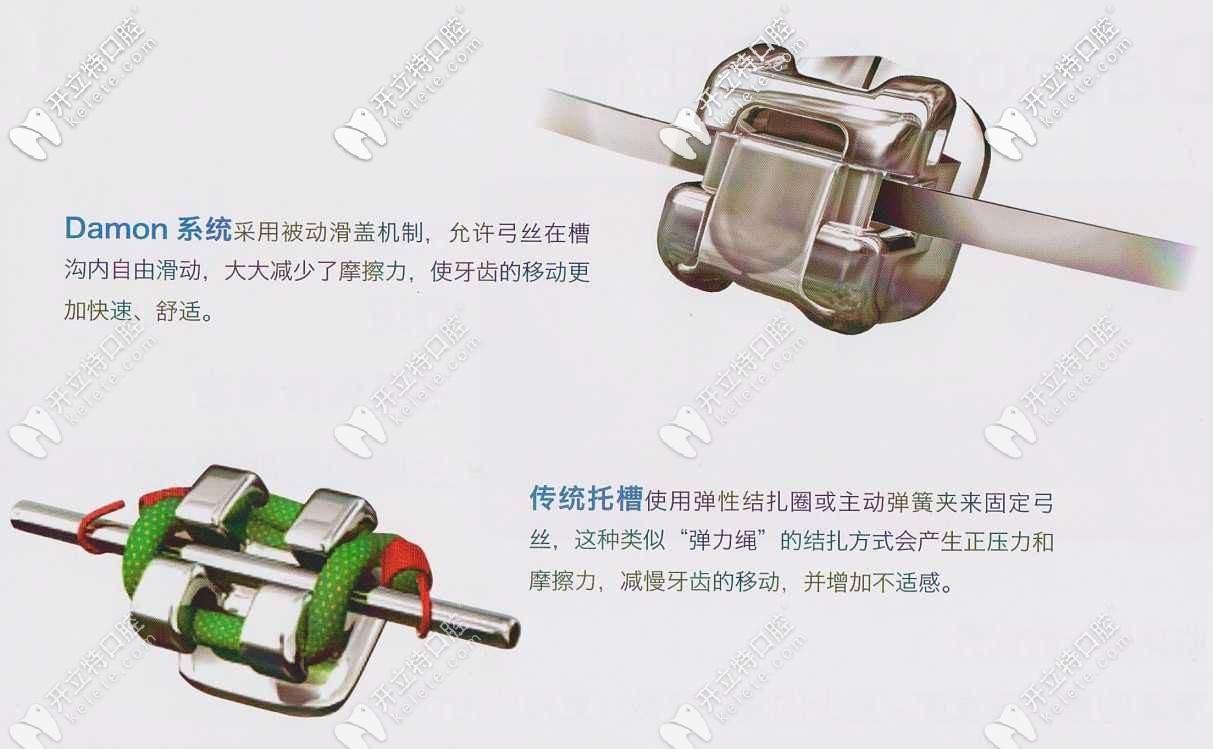 自锁托槽矫正和传统矫正区别