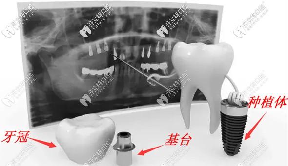 关于种植牙中复合基台和普通基台的区别,不懂的看这里